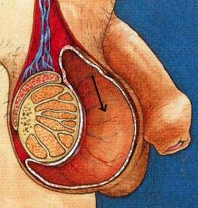 Фото: Первоначальные симптомы варикоцеле яичка