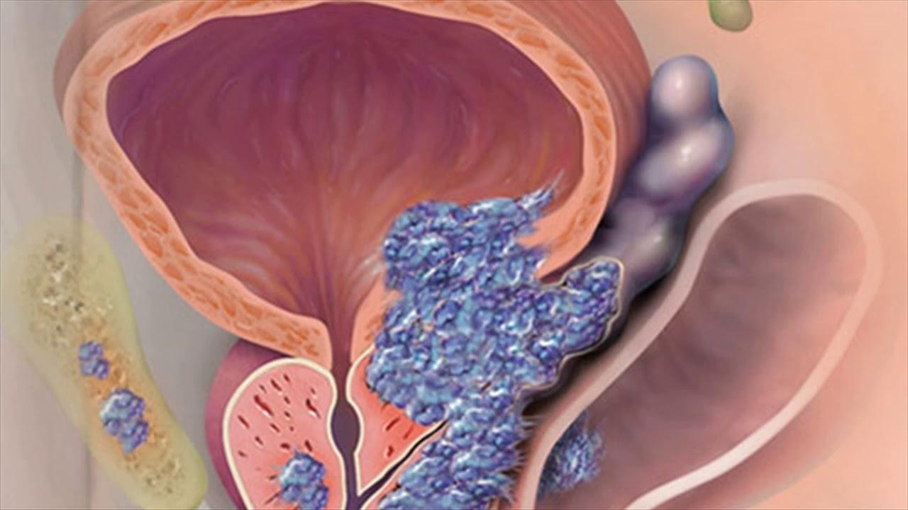 простатит у мужчин может перейти в рак